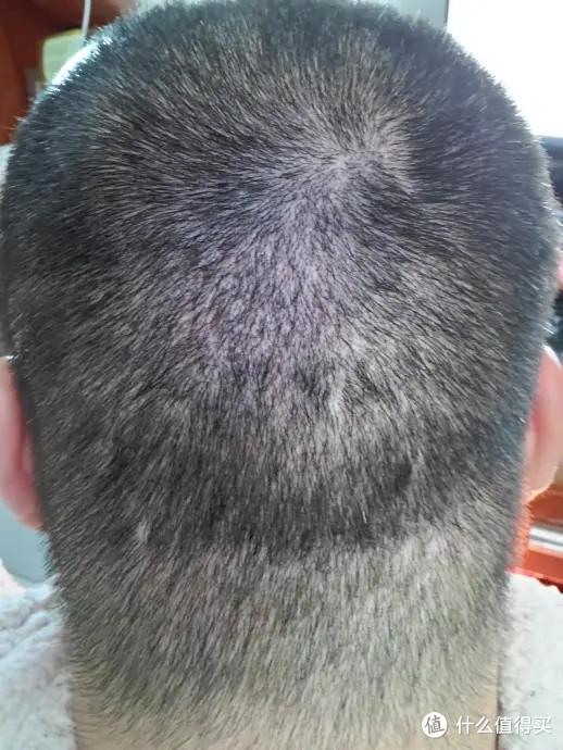 植发一年四个月的对比照