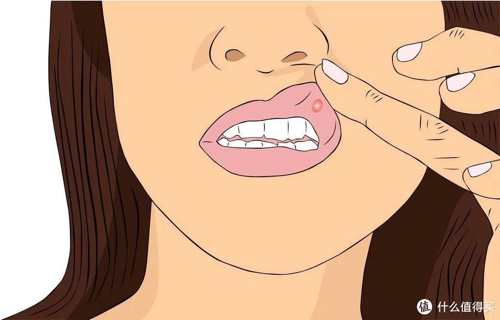 """口腔溃疡是""""绝症""""吗?让一个月内长出20多个溃疡的人来告诉你"""